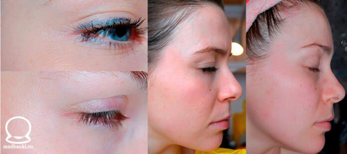 Фото до и после процедуры массажа лица