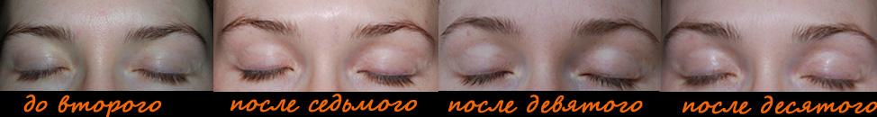Подъем бровей и раскрытие зоны глаз после массажа лица, фото анфас