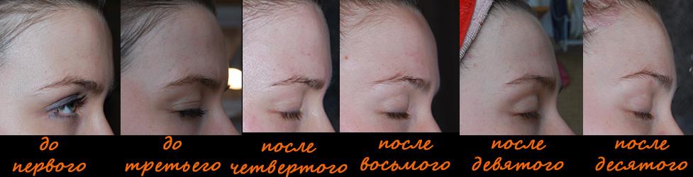 Брови и глаза после вакуумного массажа, фото профиль слева