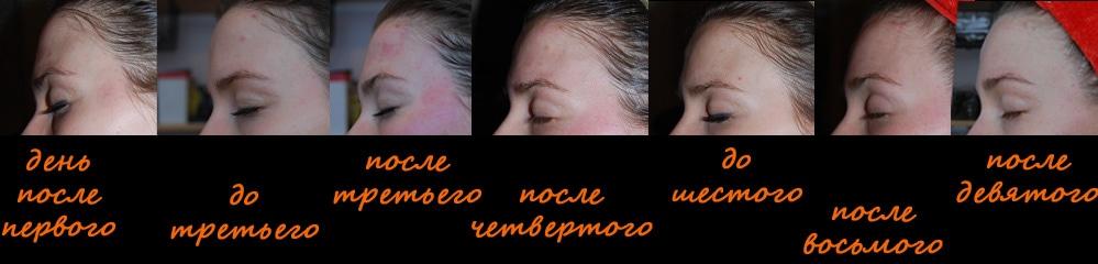 Линия бровей после массажа банками, профиль слева