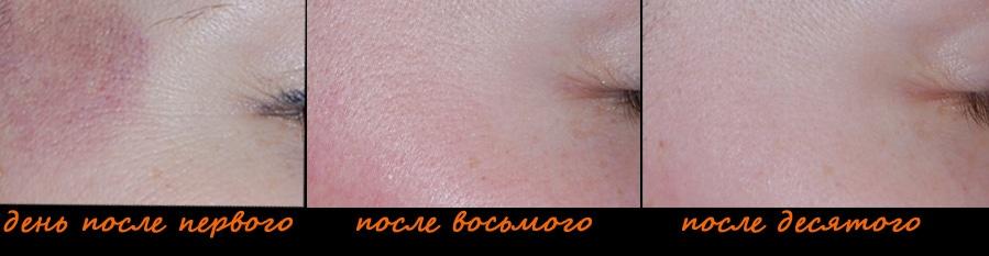 Гусиные лапки, фото до и после 10 сеанса вакуумного массажа