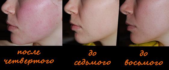 Носогубки, фото до и после