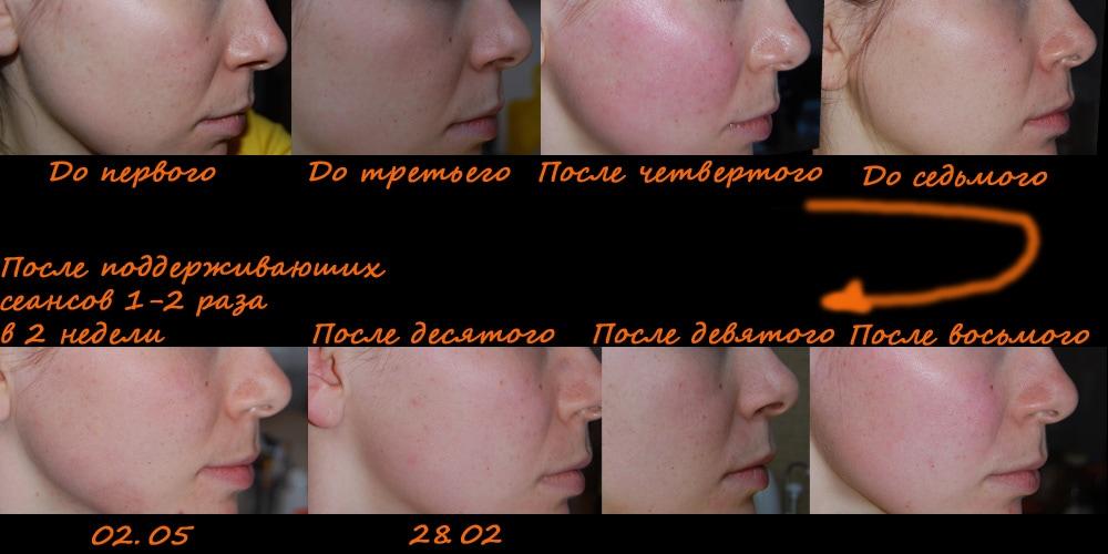 Носогубные складки, фото до и после 10 сеанса массажа банками