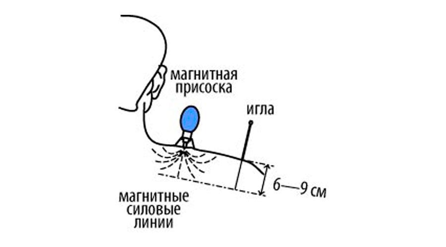 Принцип действия МПАД