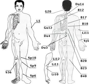 Ригидность, парез и паралич мышц руки