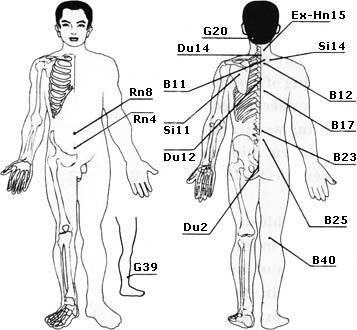 Ригидность затылочных мышц