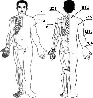 Заболевания плечевого сустава