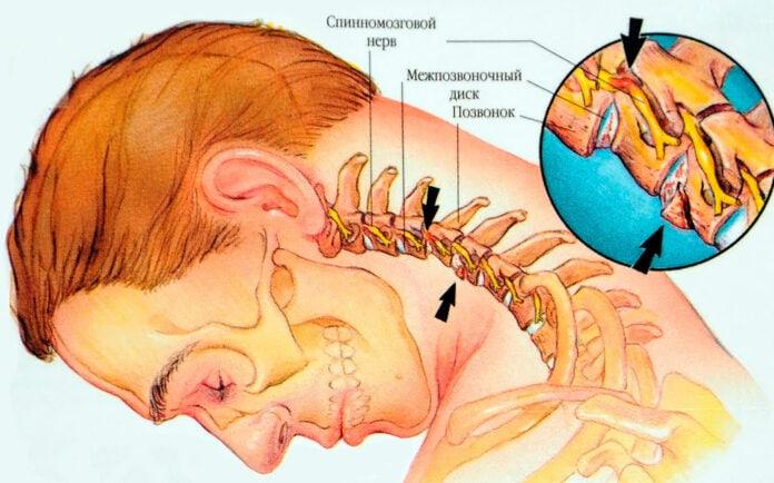 Остеохондроз шейного отдела позвоночника, лечение банками