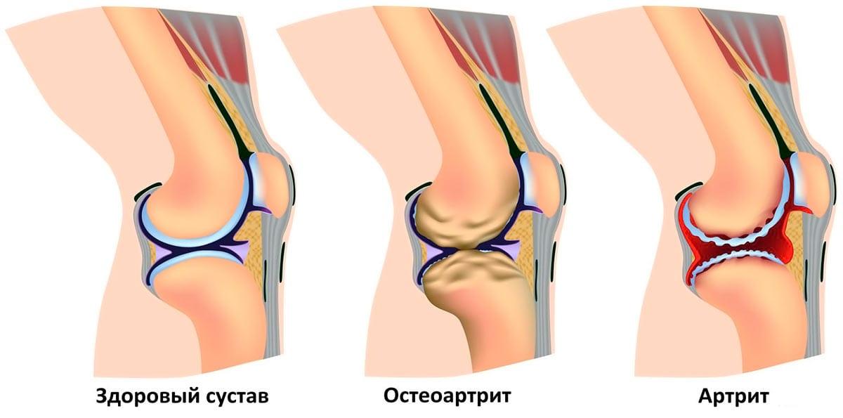 Распространенные заболевания коленей