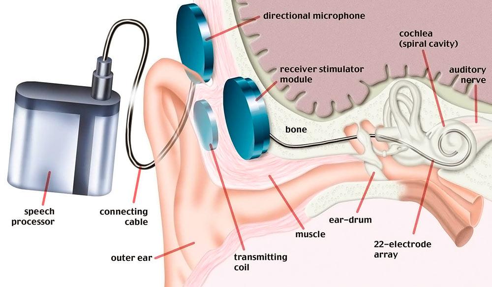 Бионическое ухо
