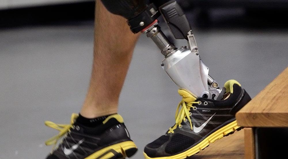 Бионическая нога