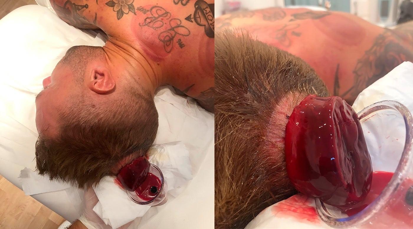 Кровопускание на голове