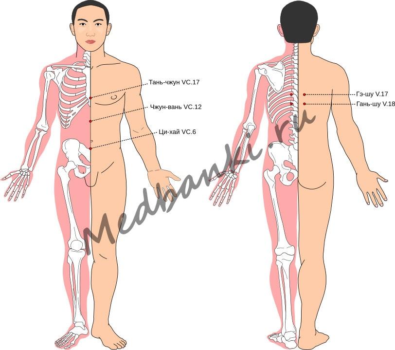 Схема выбора точек при спазме диафрагмы (икоте)