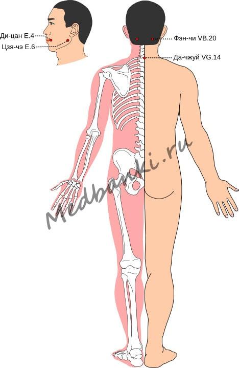 Схема выбора точек при параличе (парезе) лицевого нерва