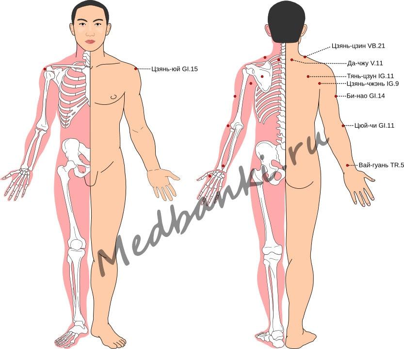 Схема выбора точек при лечении плечелопаточного периартрита