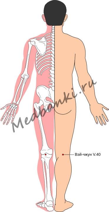Схема выбора точек при остром растяжении поясничных мышц и связок
