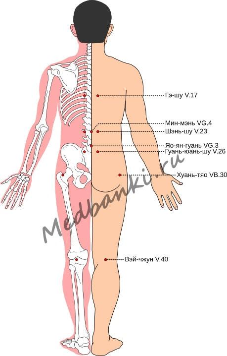 Схема выбора точек при невралгии седалищного нерва (ишиасе)