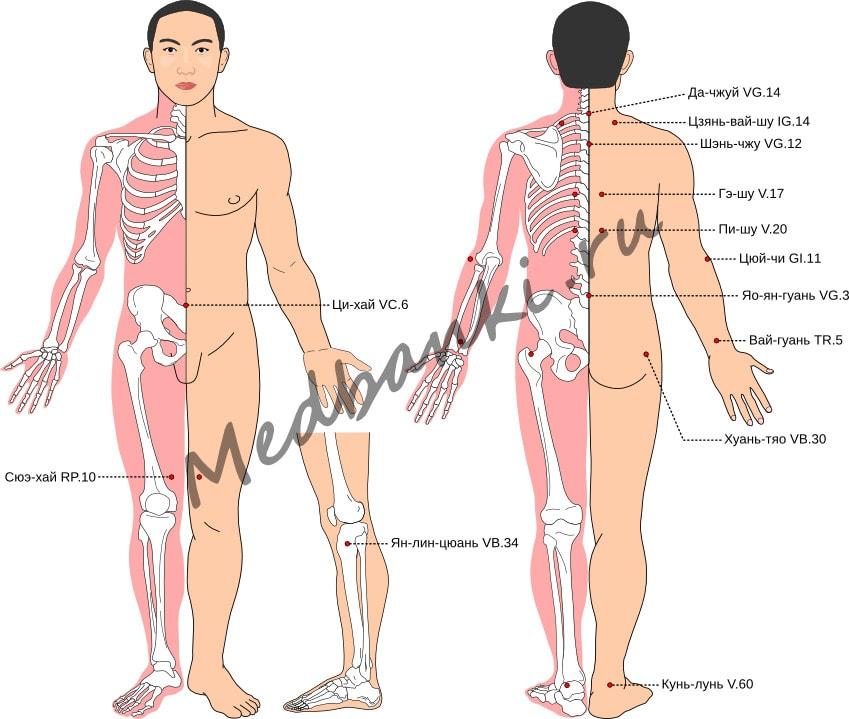 Схема выбора точек при ревматоидном артрите
