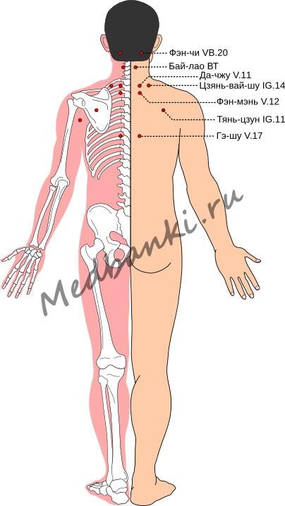 Схема выбора точек при шейно-плечевом фиброзите