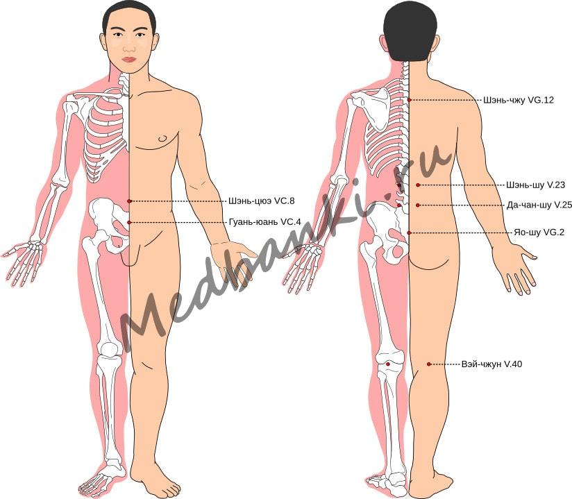 Схема выбора точек при лечении геморроя