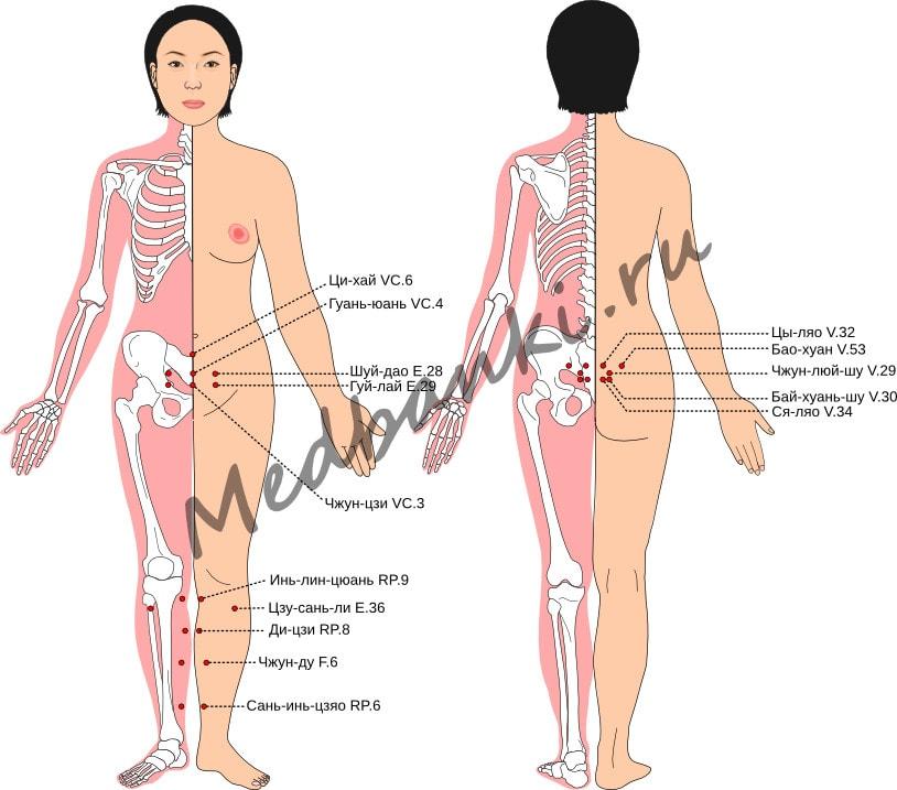 Схема выбора точек при хроническом воспалении органов малого таза