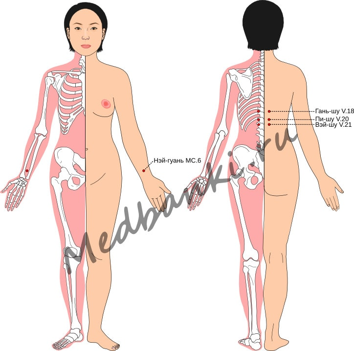 Схема выбора точек при лечении рвоты беременных