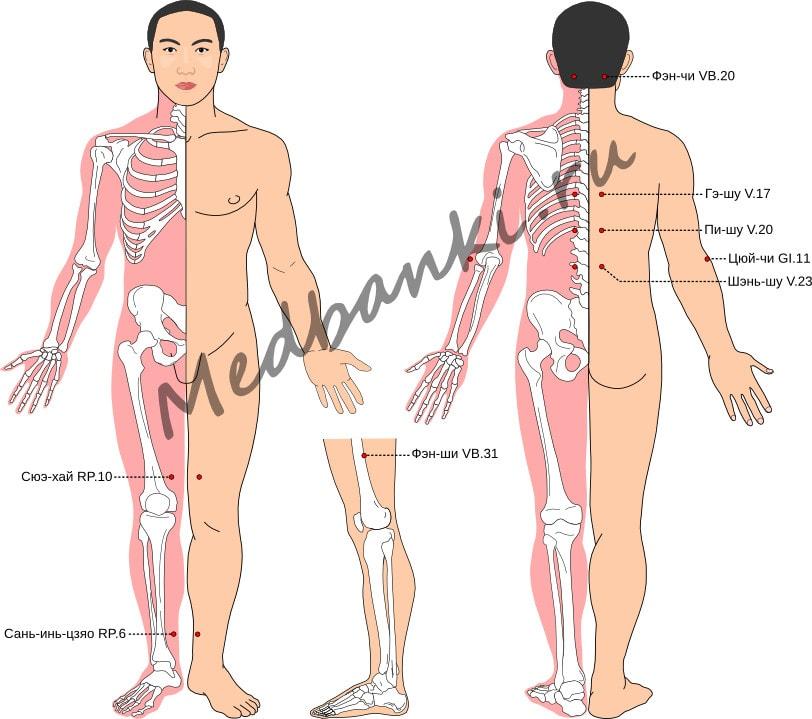Схема выбора точек при нейродермите