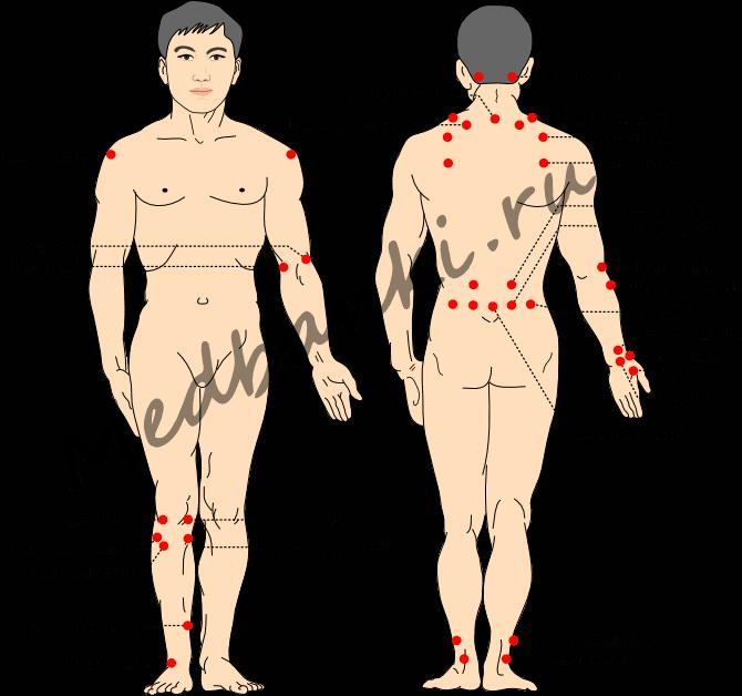 лечение повреждения мягких тканей