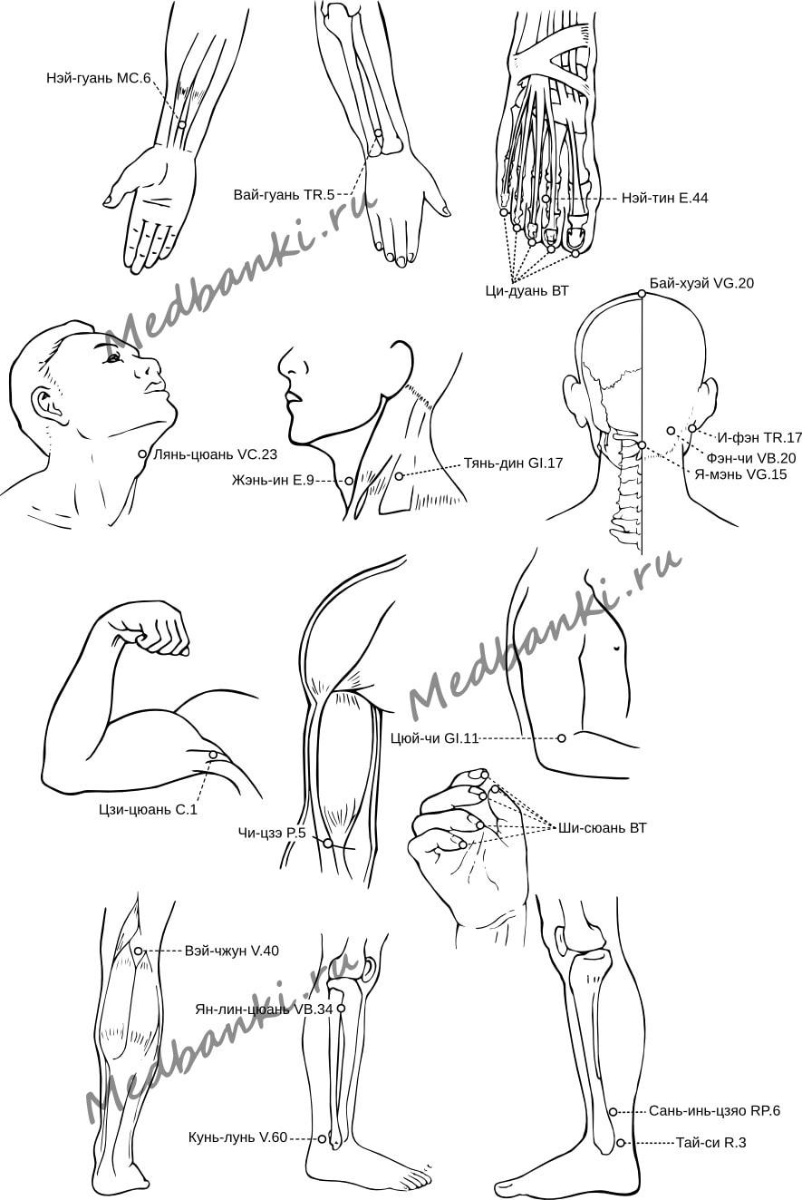 12. Остаточные явления после инсульта