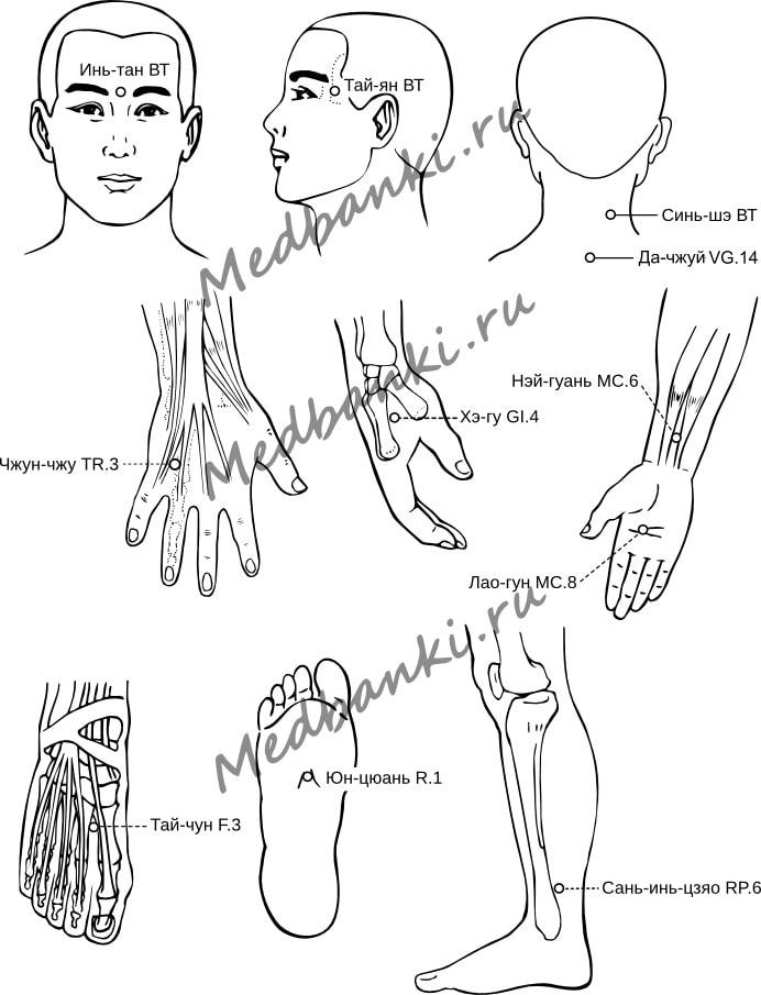 14. Головная боль, лечение банками HACI