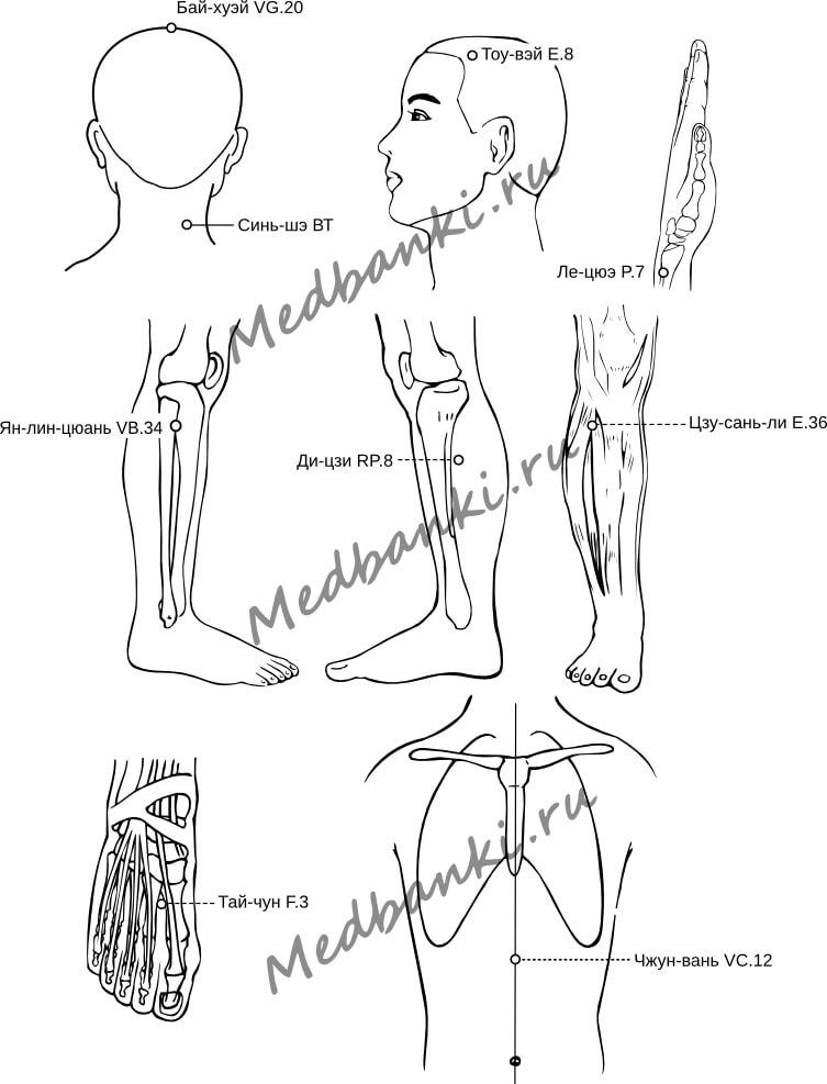 15. Мигрень, лечение магнитными присосками Haci