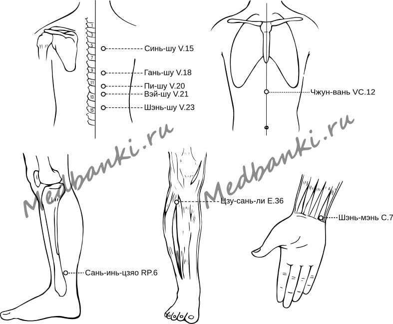 17. Неврастения, лечение присосками HACI