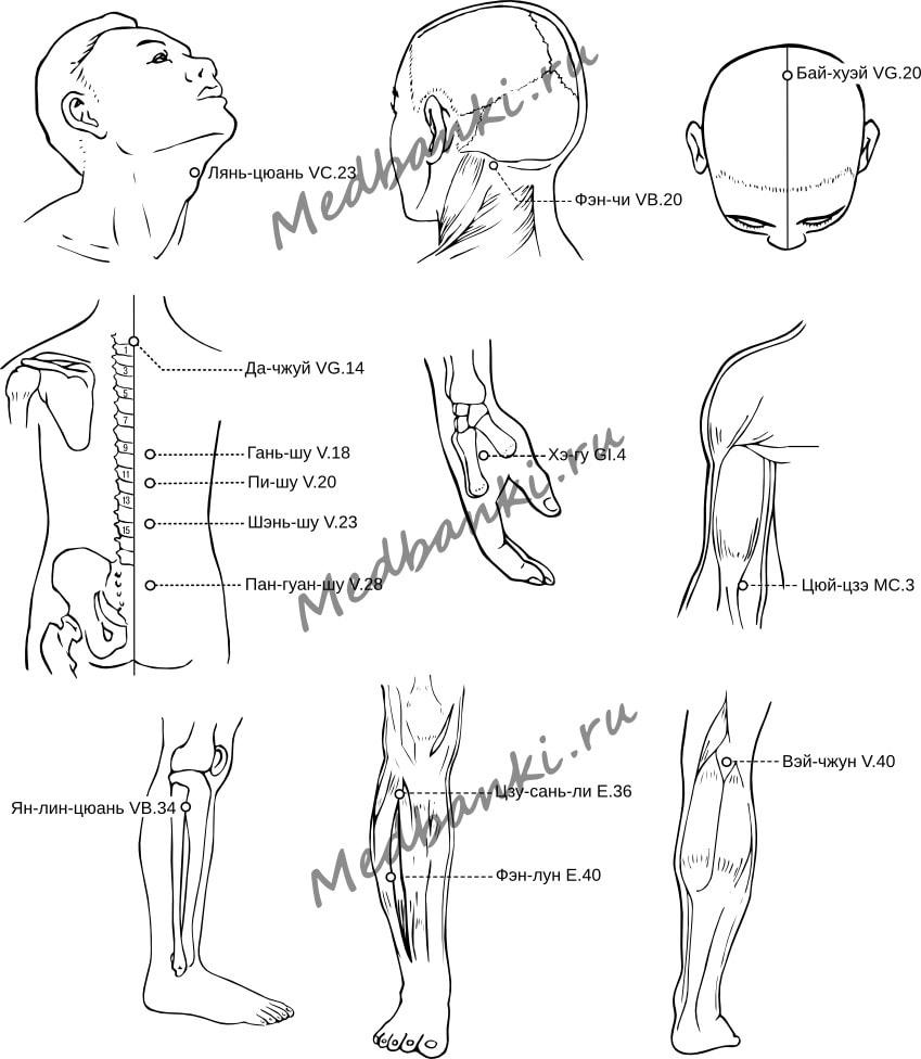 21. Дрожательный паралич, лечение присосками Haci