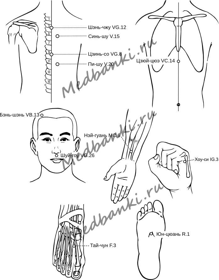 23. Эпилепсия, лечение магнитными присосками Haci