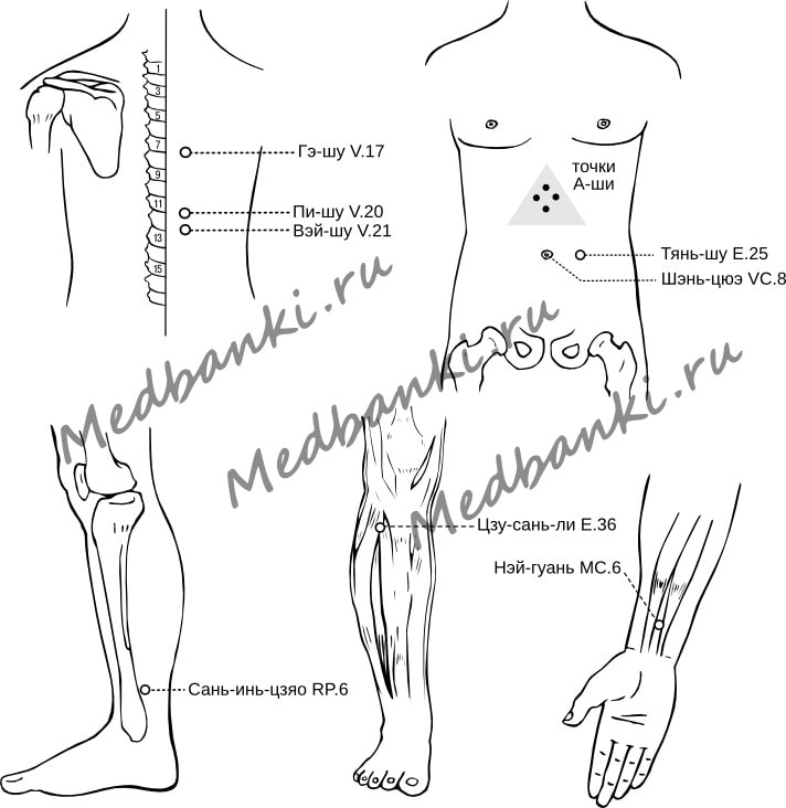 28. Язвенная болезнь желудка и двенадцатиперстной кишки, лечение банками Haci