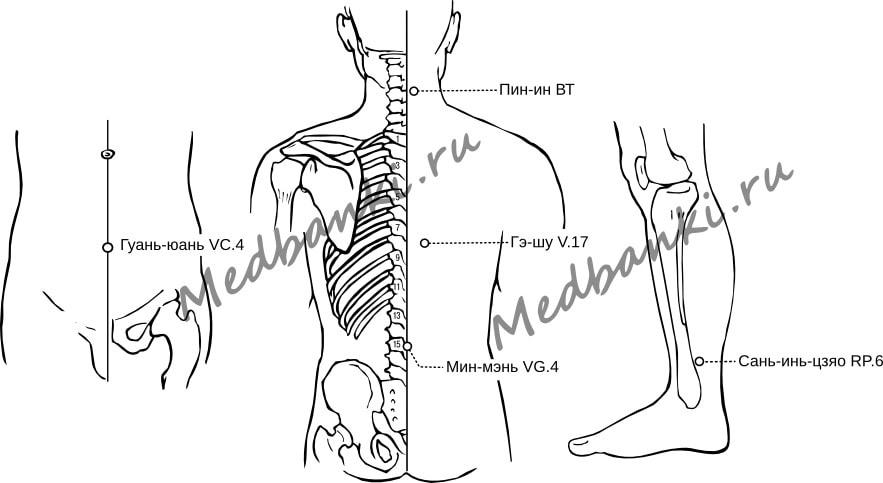 45. Гипертиреоз, лечение присосками HACI
