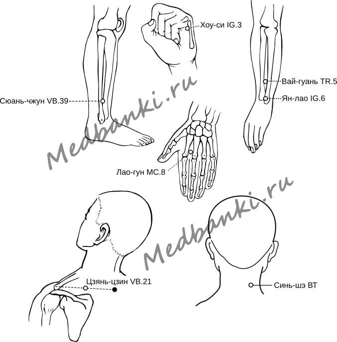 48. Растяжение связок шеи, лечение присосками HACI