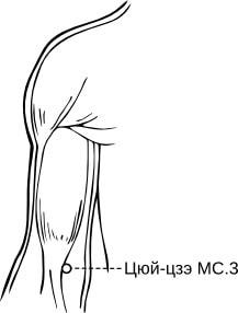 50. Карпопедальный спазм, лечение банками Haci