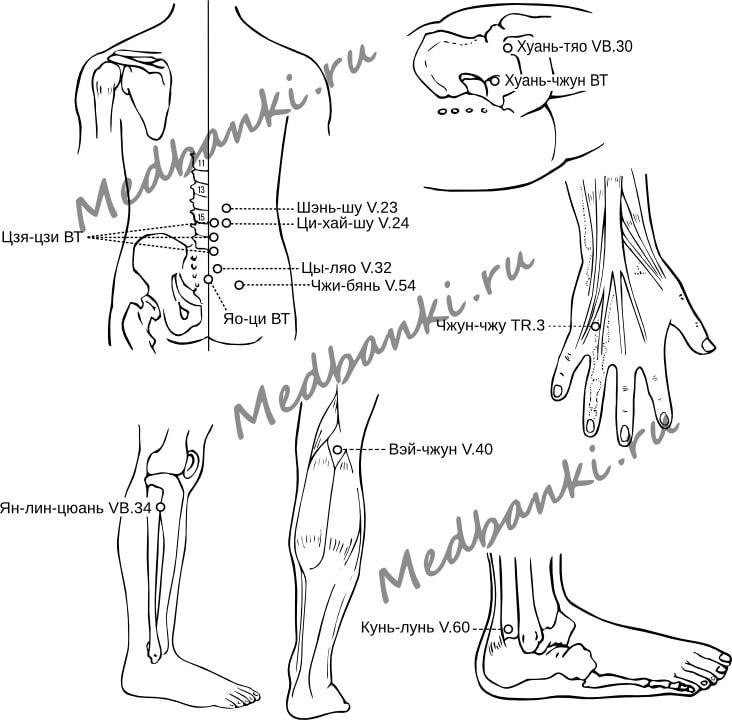55. Люмбоишиалгия - лечение магнитными присосками HACI