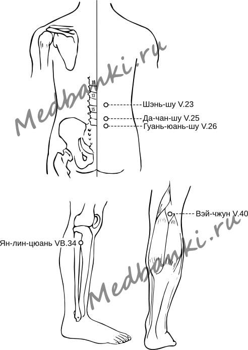 56. Протрузия межпозвоночного диска поясничного отдела позвоночника, лечение банками Хаси