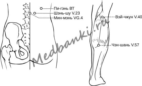 Повреждение поясничных мышц