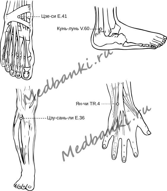 58. Подвывих голеностопного сустава, лечение магнитными банками Haci