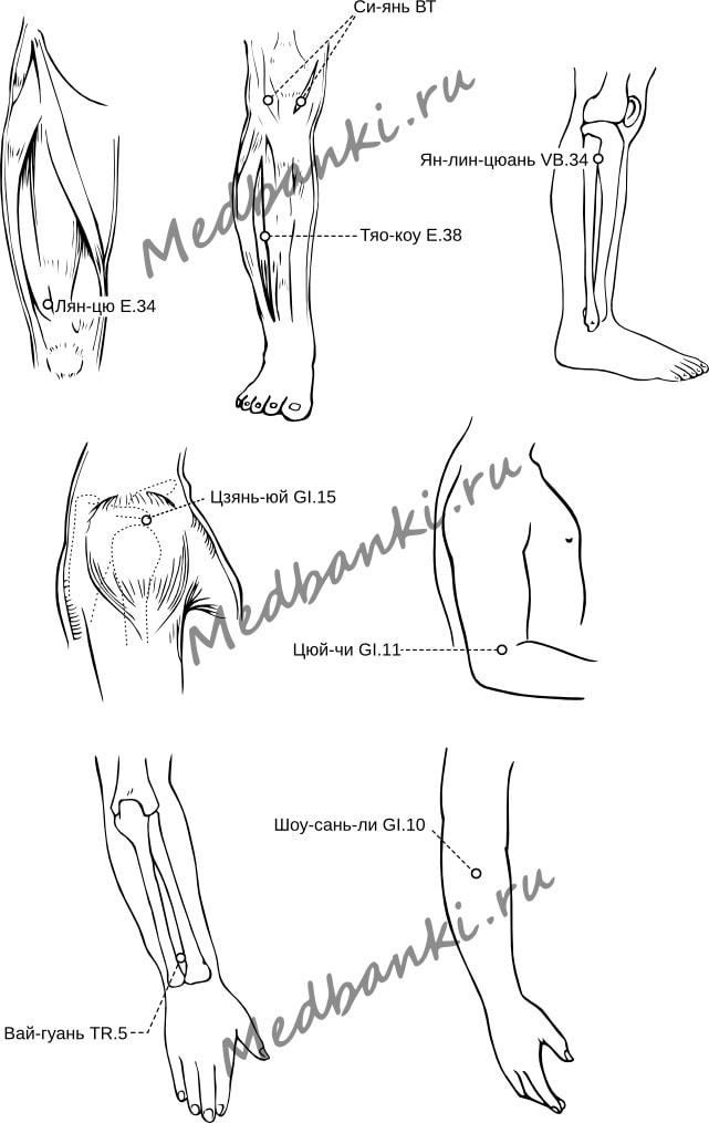 60. Ревматоидный артрит, лечение присосками HACI
