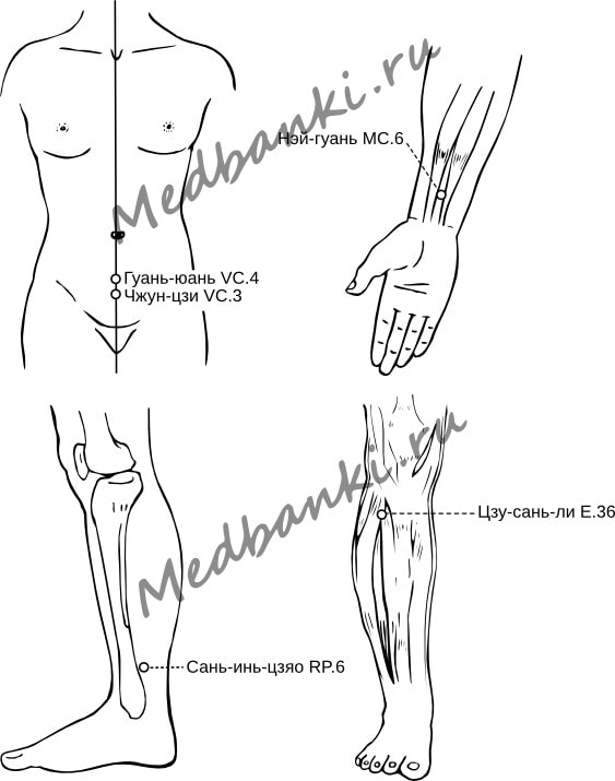 68. Женское бесплодие, лечение магнитными присосками HACI
