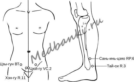 69. Миома матки, лечение магнитными присосками HACI