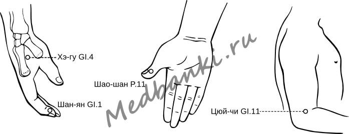 70. Тонзиллит острый, лечение присосками HACI