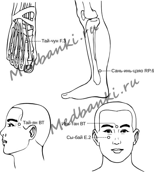 102. Глаукома, лечение присосками HACI
