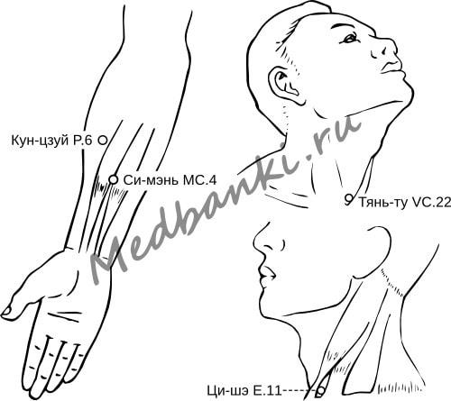 108. Кровохарканье, лечение присосками HACI