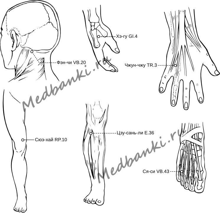 114. Плоские бородавки, лечение магнитными присосками HACI