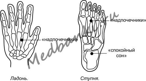 6. Артериальная гипертония, лечение присосками Haci